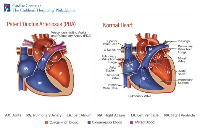 Patent Ductus Arterious - Lily's Heart Warriors