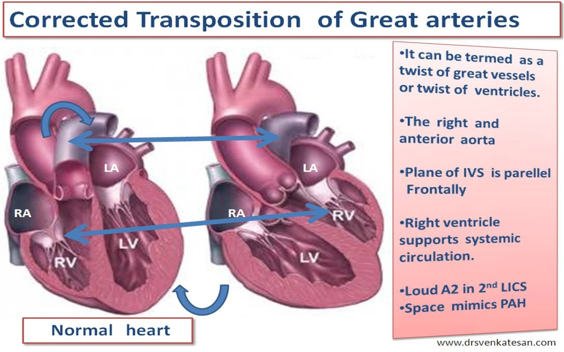Congenitally Corrected Transposition Of The Great Arteries Or Great